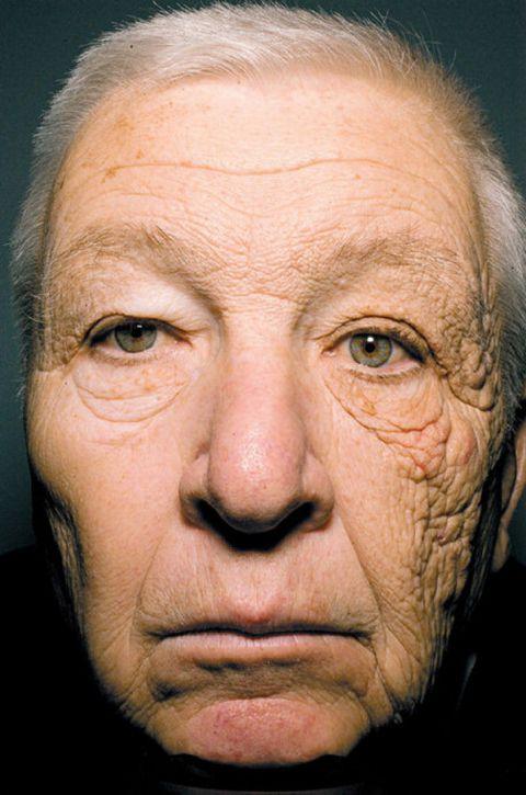 顔の半分だけ日焼けした人がいる?